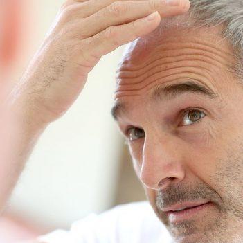 Anastasakis Hair Clinic